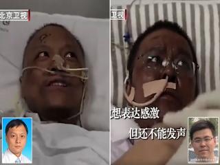 """پوست 2 پزشک چینی مبتلا به """"کووید-19"""" سیاه شد"""