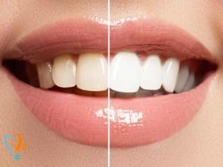 بهترین دکتر بلیچینگ و سفید کردن دندان در تهران